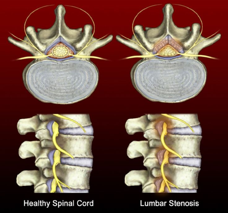 Surgical and nonsurgical spinal stenosis treatment outcomes similar after eight years - http://www.orthospinenews.com/surgical-and-nonsurgical-spinal-stenosis-treatment-outcomes-similar-after-eight-years
