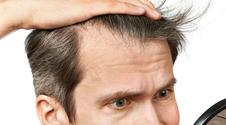 Lhuile de ricin le masque pour les cheveux pour la croissance des cheveu