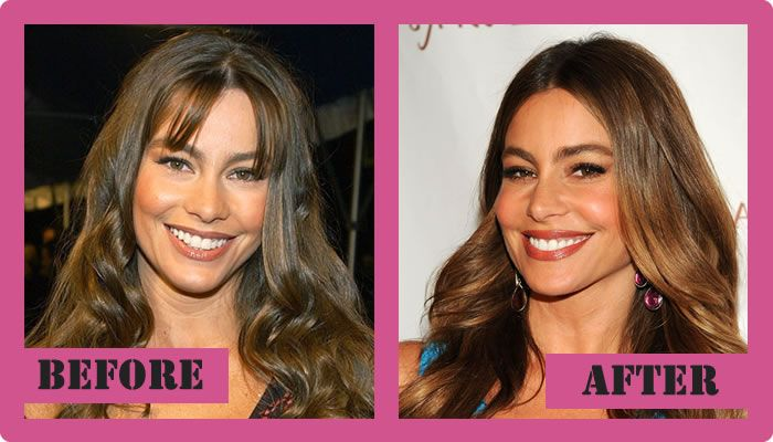 Sofia Vergara Plastic Surgery Before And After Sofia Vergara Plastic Surgery #SofiaVergaraplasticsurgery #SofiaVergara #gossipmagazines