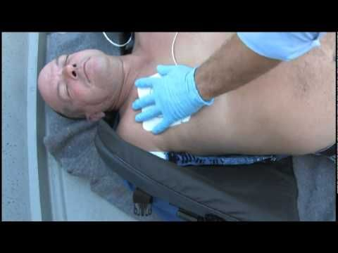 External Automatic Defibrillator (Training Video)