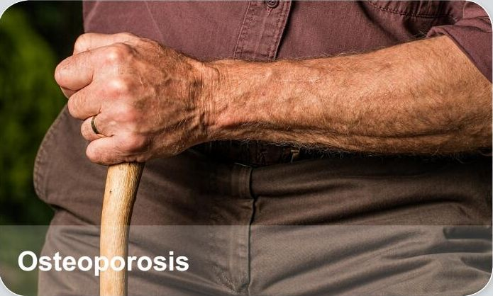 Orthopedic Trauma Diseases-Osteoporosis, Osteoporosis is a disease where decreased bone strength increases the risk of a broken bone. It is the most common reason for a broken bone among the elderly. Bones that commonly break include the back bones, the bones of the forearm, and the hip.