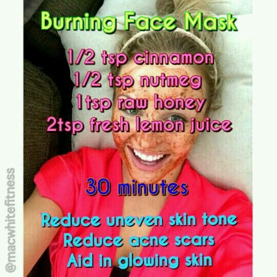 Burning face mask- helps even out skin tone and acne scars!!!