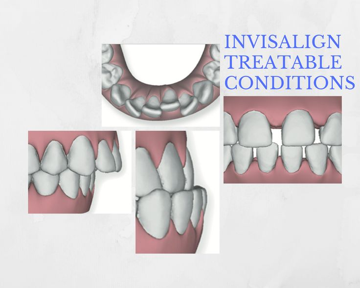 Invisalign treatment is where you get orthodontic straightening of teeth by using sets of clear plastic aligners.  By switching to new trays every two weeks or so, Invisalign has been used by millions of people worldwide to treat conditions such as:  * ov http://getfreecharcoaltoothpaste.tumblr.com