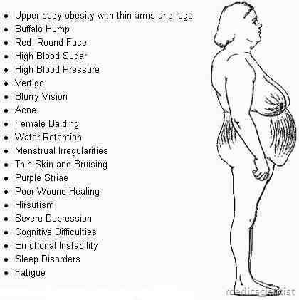 Cushing's Syndrome Symptoms   Cushing's Syndrome Symptoms Causes and Treatment - MedicScientist