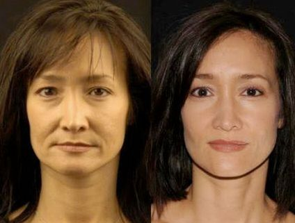 Eradicate Sagging Face Skin And Face Wrinkles Doing Face Renewal Gymnastics