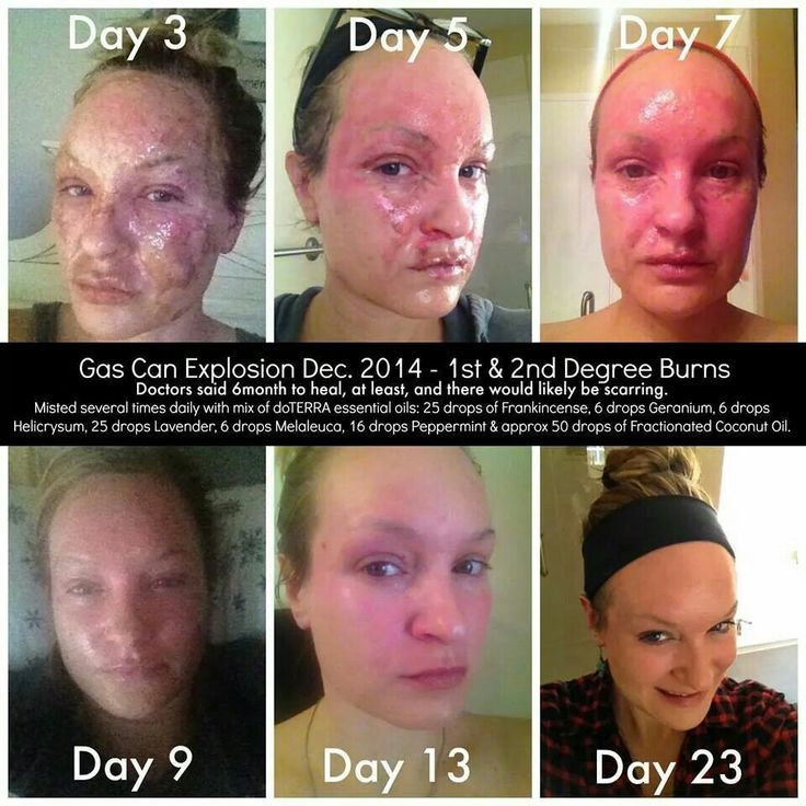 Real results using doTERRA essential oils: gas can ...