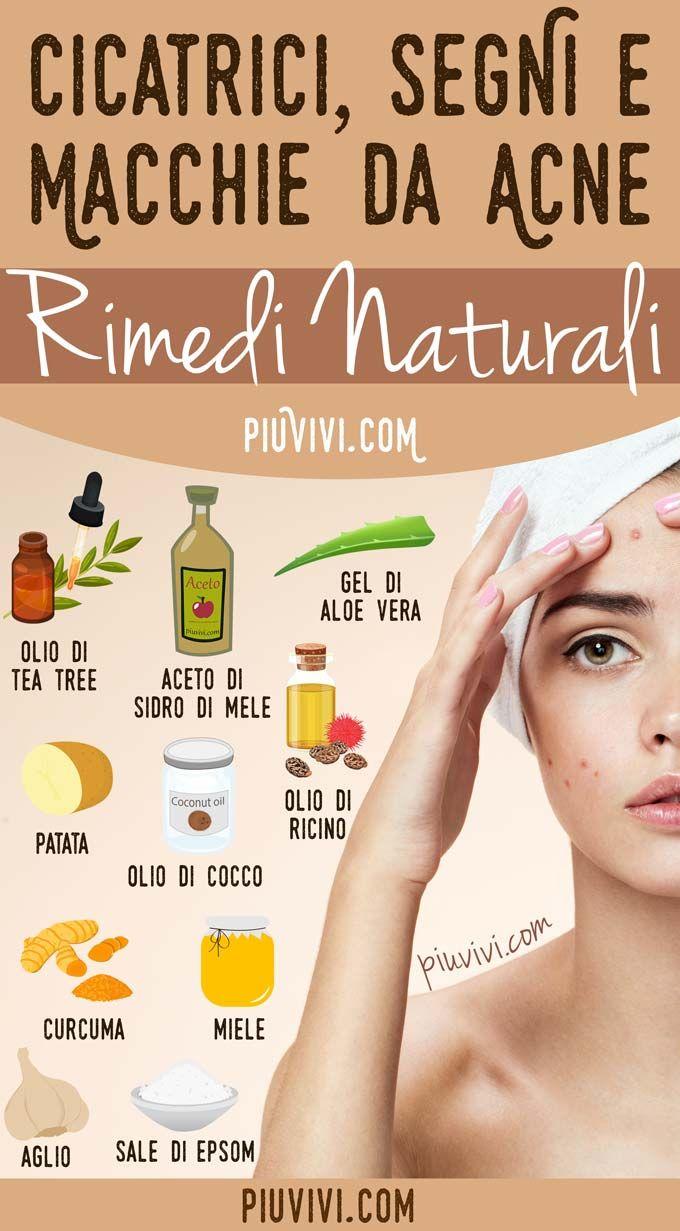 rimedi per acne viso