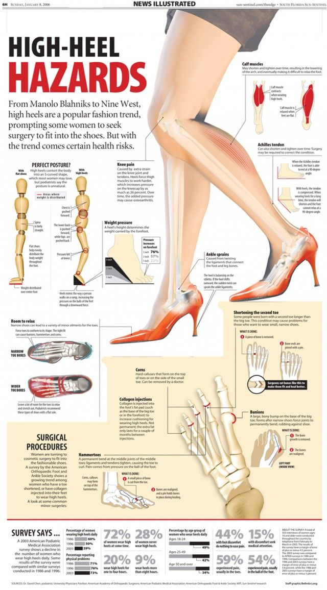High-Heel Hazards [infographic] | Daily Infographic | Consumer Healthcare Trends