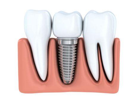 | Chybějí Vám zuby? Nevyhovuje Vám snímací zubní náhrada? Ošetření zubními implantáty je dnes všeobecně uznávané jako velmi spolehlivé medicínské řešení.