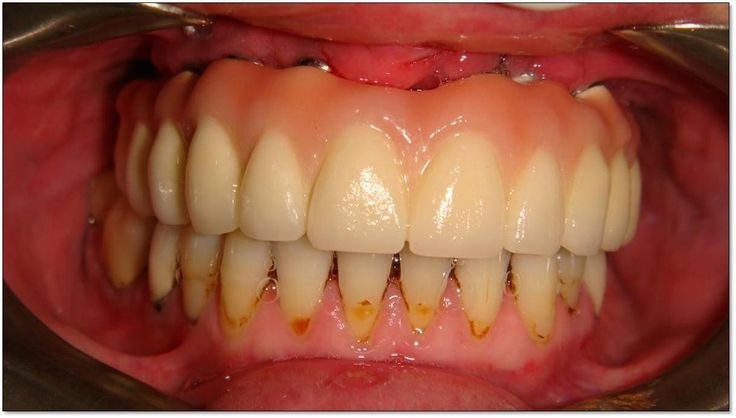 Atrofia de maxilar superior y colocación de implantes, caso clínico ... Random Images - Found on the internet