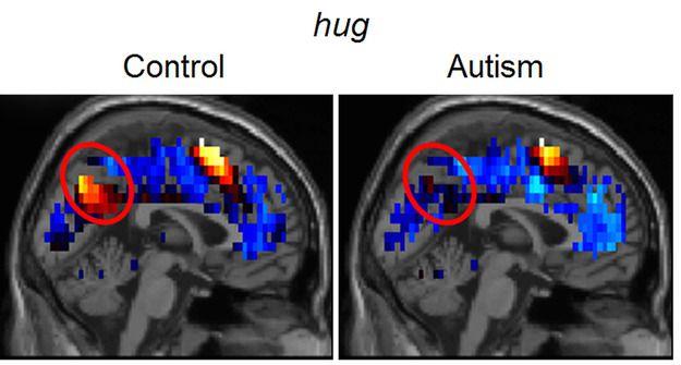 Nowa metoda diagnozy autyzmu