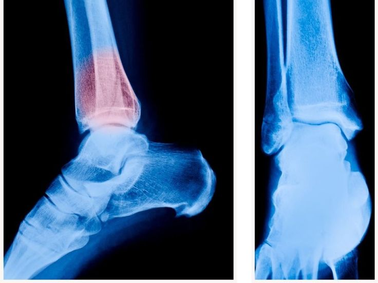 Home remedies for bone spur include cold pack, linseed oil, flaxseed hot pack, footbath, turmeric, mild exercise, foot care, warm up, weight loss etc.Bone Spur or osteophytes is an extra bone that appears as a raised projection due to continuous pressure and wear and tear of the bones. It usually occurs at joints, hips, feet, spine, shoulders, knees and hands. One undergoes severe pain in the region accompanied by inflexibility of that part. This occurs due to obstruction in free movement…