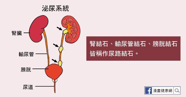 尿路結石包含腎結石、輸尿管結石、與膀胱結石