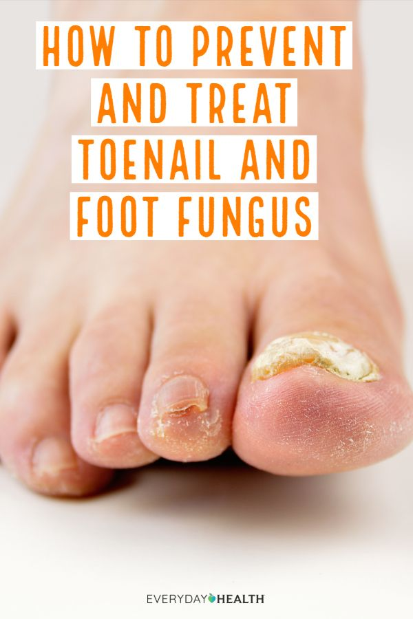 How To Stamp Out Toenail And Foot Fungus Everyday Health Antifungal Cream Peeling Skin Good Fats