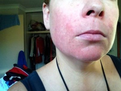 Healing eczema   www.allergysave.com