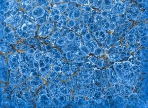 Stem cells to treat rheumatoid arthritis  http://www.clinicaltrialsmagazine.com/stem-cells-treat-rheumatoid-arthritis/