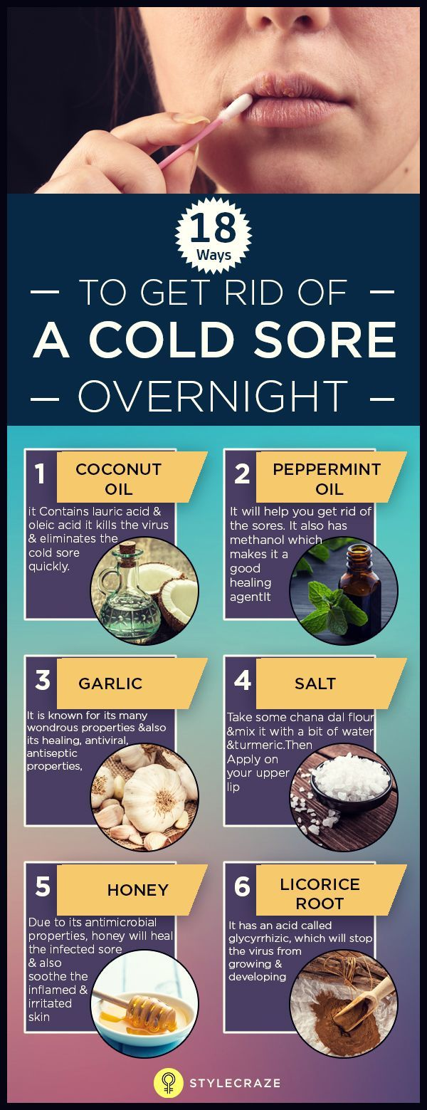 You woke up this morning, and suddenly, you notice a cold sore on your lips. Wondering how to get rid of a cold sore overnight? Worry not, you are at the right place
