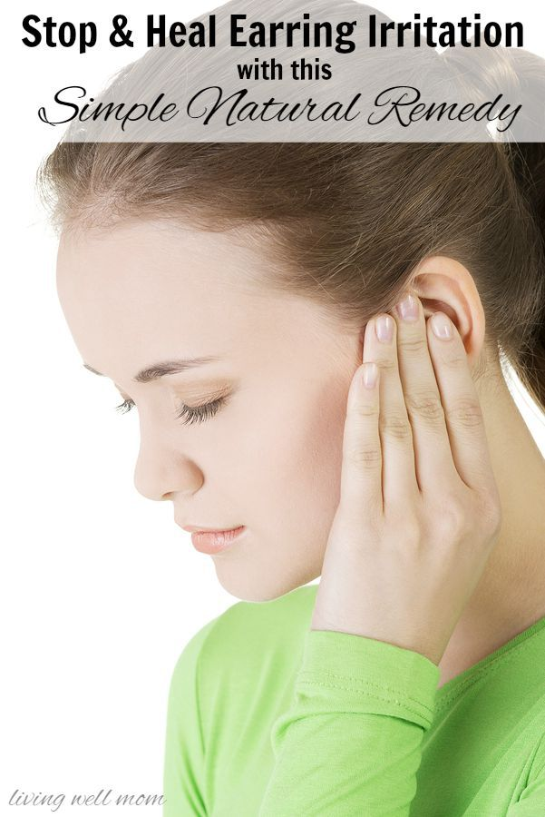 Prevent and heal earring irritation with this simple all natural remedy for sensitive ears
