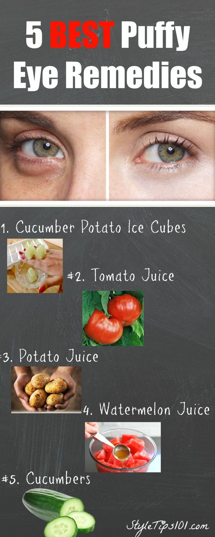 All natural homemade puffy eye remedies that actually WORK!