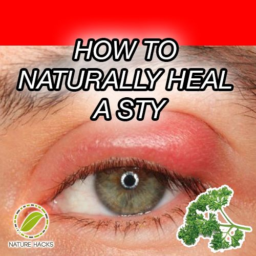 How to Naturally Heal a Sty