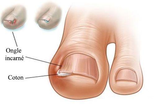 Comment traiter un ongle incarné (traitement maison)