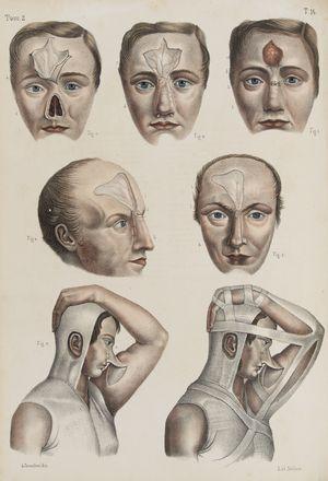 Bourgery Jean Marc : Iconografia d'anatomia chirurgica e di medicina operatoria.  - Asta Libri, Manoscritti e Autografi - Libreria Antiquaria Gonnelli - Casa d'Aste - Gonnelli Casa d'Aste