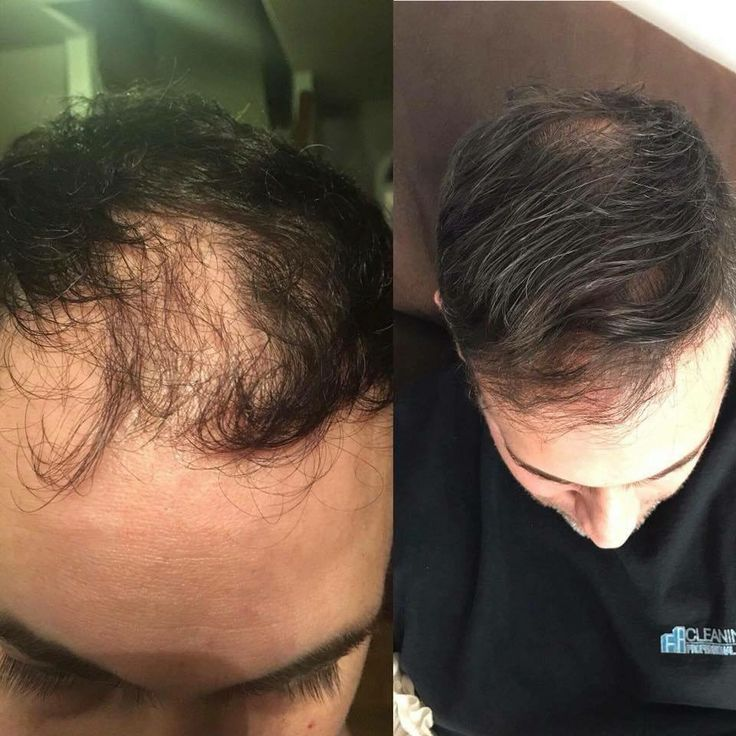 Biocell life hair growth