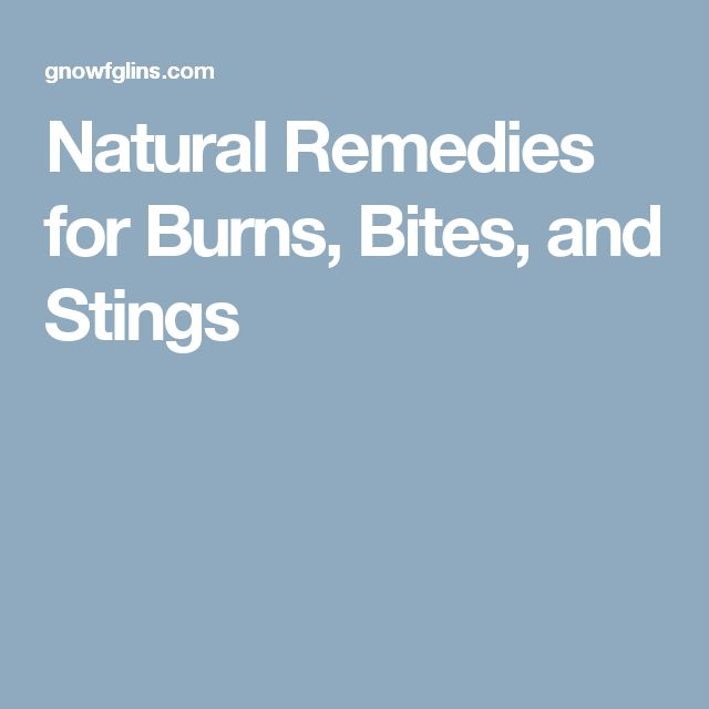 Natural Remedies for Burns, Bites, and Stings