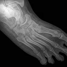 Orthopedists sometimes prescribe bone growth stimulators, typically when a fractured bone fails to heal properly. It's not exactly clear how they work, but research suggests these devices can affect a variety of factors involved in bone growth.