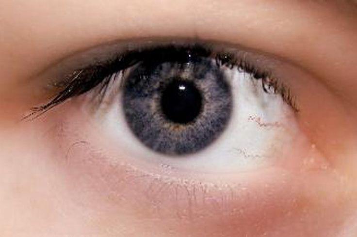 ¿Cuáles son los tratamientos para el eccema alrededor de los ojos? | Muy Fitness