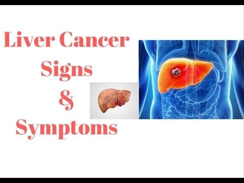 Liver Cancer Signs and symptoms