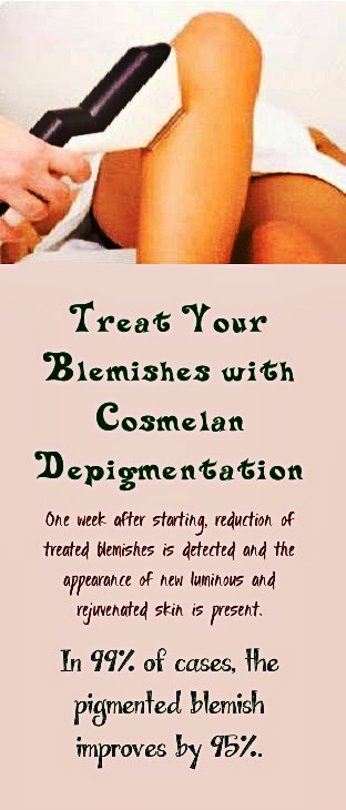 Cosmelan Depigmentation treatment successfully lightens visible discoloration in the skin caused by sun exposure, acne, aging and hormone fluctuations and inhibits the pigmentation cycle. #medicalspa #beauty