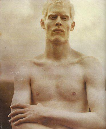 Albino Male Porn