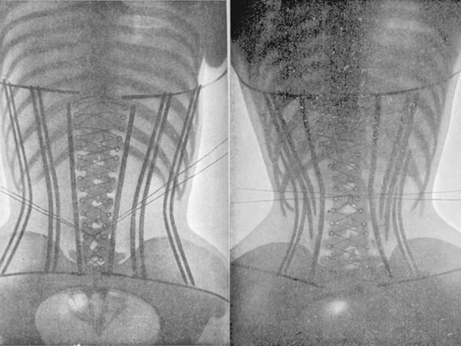 In 1908, a doctor used X-rays to highlight the damaging effects of tight corsets on a woman's body.