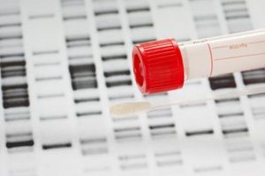 How Much Can You Learn From a Home DNA Test?
