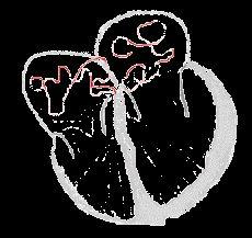 Heart conduct atrialfib.gif