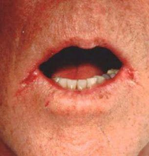candidiasis causes