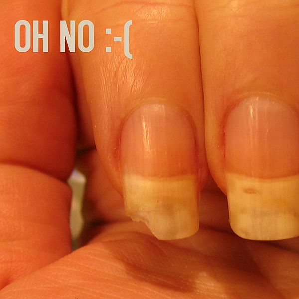 Super cool invisible method for fixing a badly broken nail!