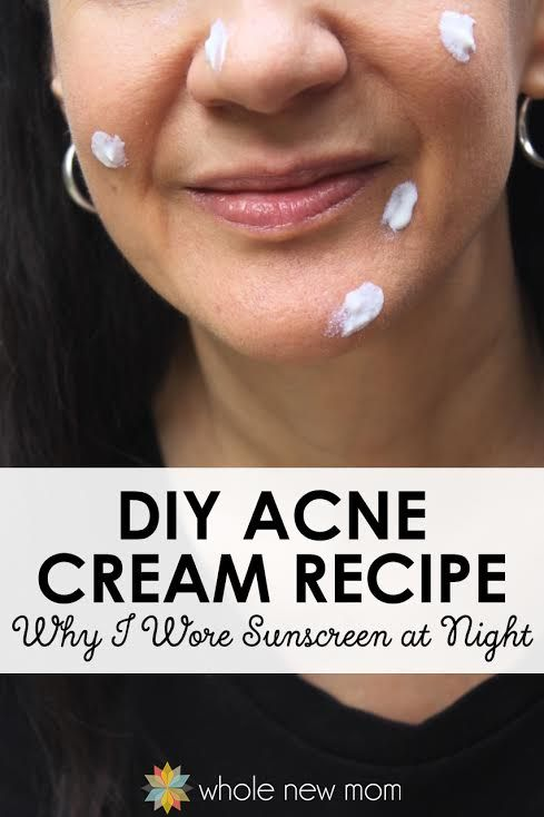 I've tried all kinds of acne treatments, but this zinc oxide really worked! Here's a great Homemade Acne Treatment & find out why I wore sunscreen at night!