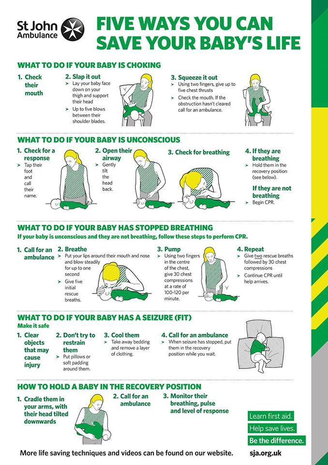 How to resuscitate a baby in need of help