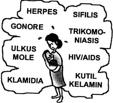 melakukan hubungan sex yang sehat dan aman, serta tidak berganti2 pasangan. Vaksin sangat efektif bagi wanita yang belum pernah terkena infeksi HPV. Sedangkan bagi mereka yang sudah terkena infeksi HPV, maka efektifitasnya berkurang . Untuk wanita yang sedang hamil, maka ia baru boleh divaksinasi setelah bayinya lahir. http://caramengobatitanpaoperasi.wordpress.com/2014/10/30/cara-mengobati-kutil-kelamin-di-anus/