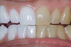 Ele misturou 2 ingredientes e passou nos dentes. O resultado dentes brancos como nunca!