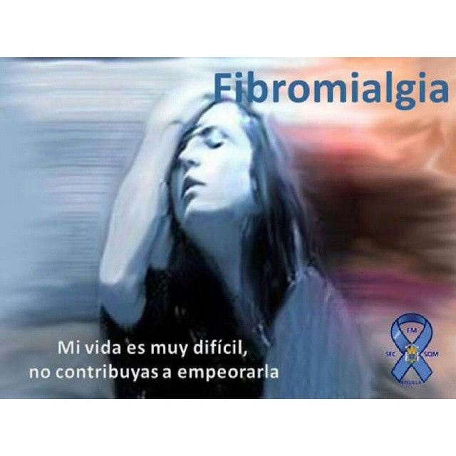Los criterios que definen el síndrome fibromiálgico fueron establecidos en 1990 por el Colegio Americano de Reumatología. Se establecieron con fines epidemiológicos y de investigación, para selecc…
