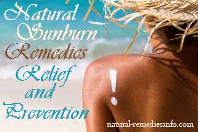 Natural Sunburn Remedies, Relief and Prevention #sunburn