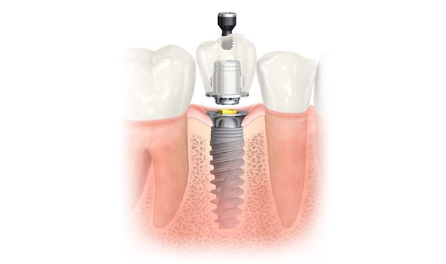 [Are there different types of dental implants?] ----------------------------------------------------------- ⚡There are many dental implant manufacturing companies, but at C-vitamin Clinic we only use the highest quality dental implant such as Alpha Bio, Camlog or Nobel Biocare. #dentalimplant #dentistry #dentalclinic #cvitaminclinic #szeged #hungary