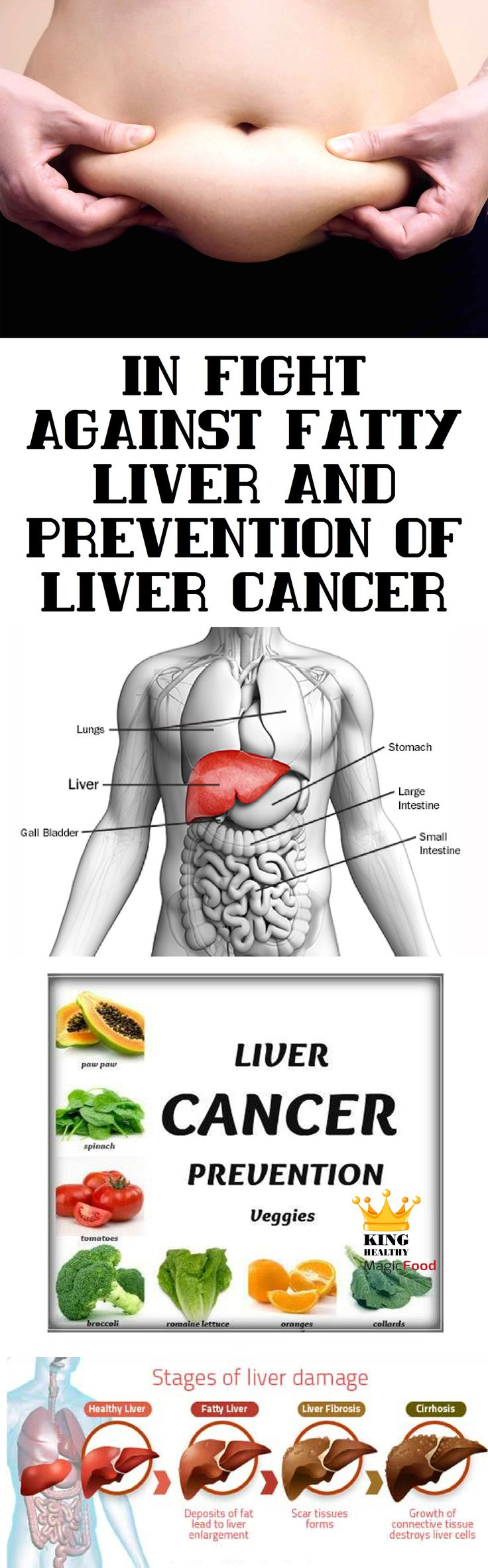 In Fight Against Fatty Liver And Prevention Of Liver Cancer