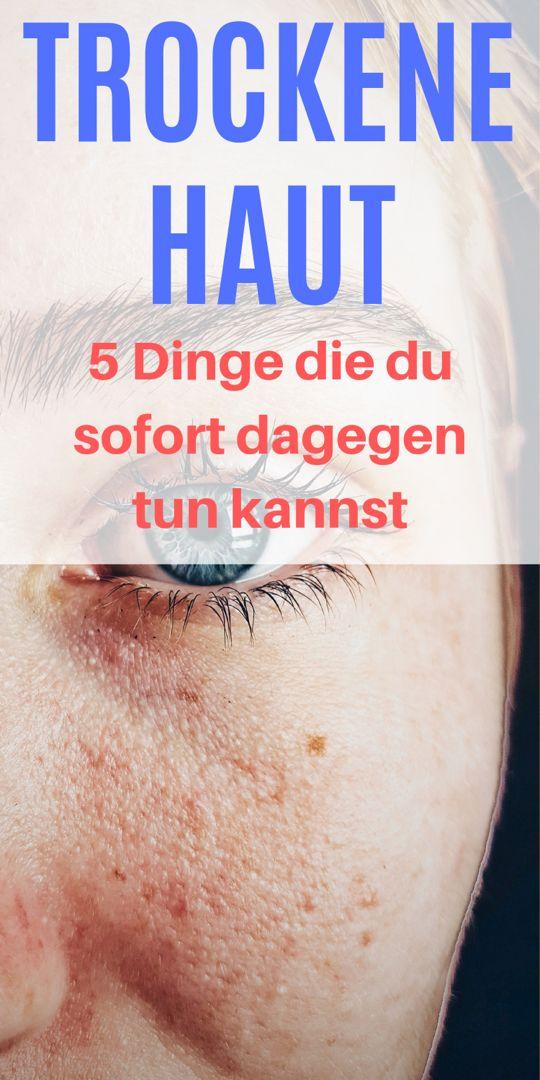 5 ultimative Tipps gegen trockene Haut – So wirst du sie schnell wieder los