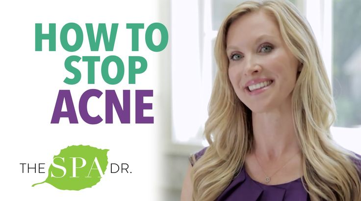 How To Cure Acne Naturally!