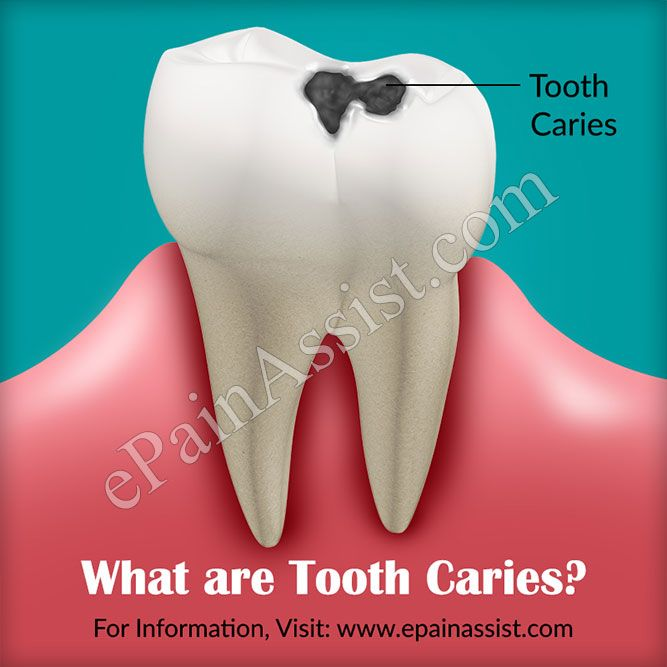 Tooth Caries: Causes, Symptoms, Treatment, Pathophysiology, Classification, Prevention #ToothCaries #Face #Mouth #ThroatPain #toothdecay #dentalcaries #dentalcavities #OralHygiene #diet #Fluoride #DentalSealants #healthcaretips #ePainAssist Read: http://www.epainassist.com/face-mouth-throat/tooth-caries