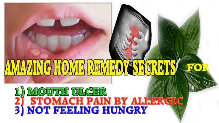 Mouth Ulcer Treatment at Home  This video is going to show You, How to do Mouth ulcer treatment at Home?
